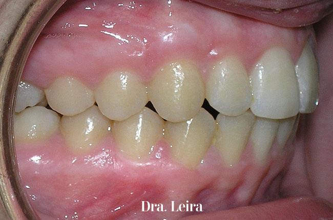 Imagen lateral de la paciente con mandíbula retruida, sobremordida y apiñamiento severo después del tratamiento con brackets Damon