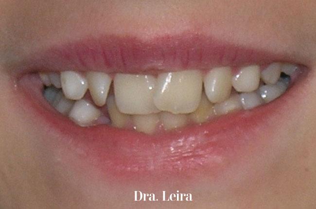Imagen de la paciente con mandíbula retruida y apiñamiento severo antes del tratamiento con brackets Damon
