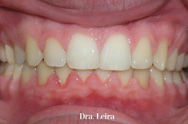 Imagen de las encías del paciente después del tratamiento con Twin-block