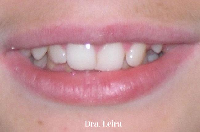 Imagen frontal del paciente antes del tratamiento con Twin-block