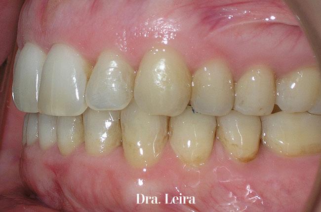 Caso 7- Imagen lateral de la paciente después del tratamiento con ortodoncia Invisalign para corregir un problema de mordida abierta anterior