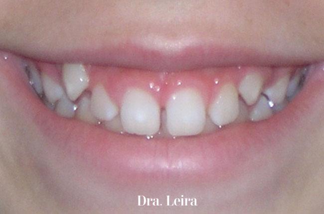 Imagen de la paciente con diastemes antes de ser tratada
